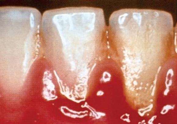 Dental caries and plaque image of teeth